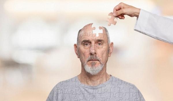 bệnh Alzheimer sống được bao lâu 1